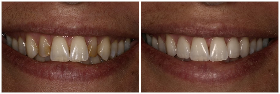 Dentist Mercer Island WA Smile Gallery Before and After Slide 1