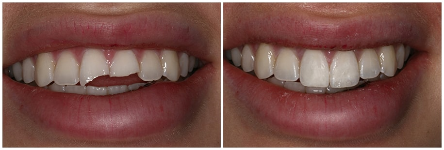 Dentist Mercer Island WA Smile Gallery Before and After Slide 2