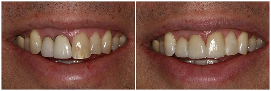Dentist Mercer Island WA Smile Gallery Before and After Slide 3