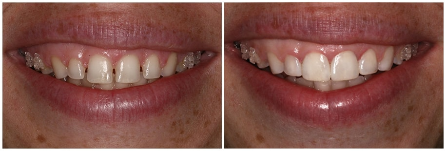 Before and After Photo for smile gallery